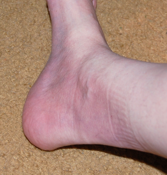 Close up of purplish right foot and ankle DSC_0008