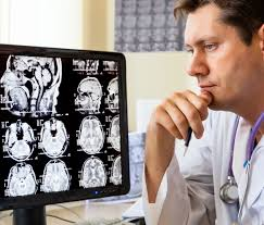 Doctor looking at brain scan film